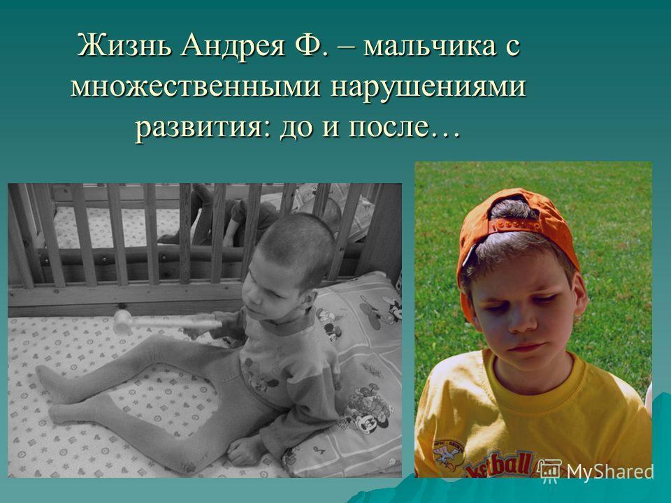 Жизнь Андрея Ф. – мальчика с множественными нарушениями развития: до и после… Жизнь Андрея Ф. – мальчика с множественными нарушениями развития: до и после…