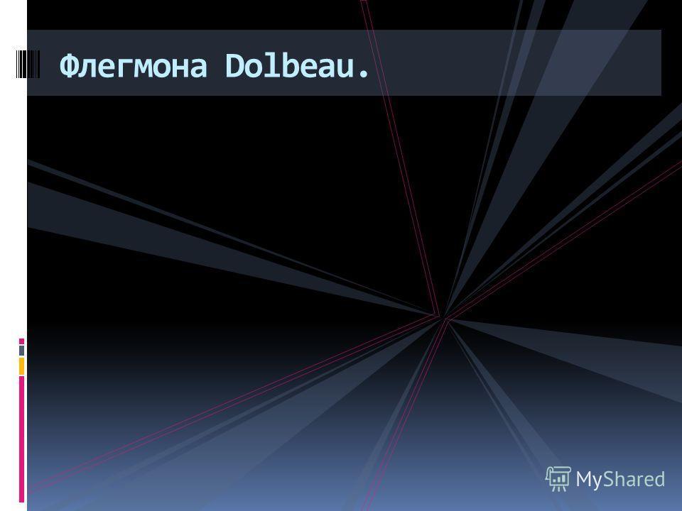 Флегмона Dolbeau.