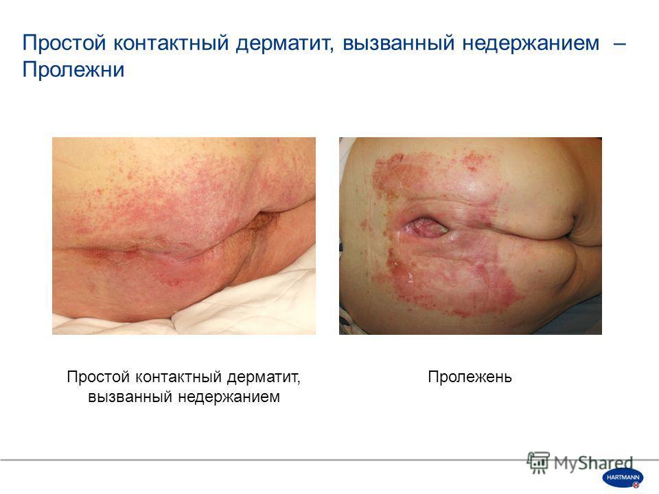 Простой контактный дерматит, вызванный недержанием Пролежень Простой контактный дерматит, вызванный недержанием – Пролежни