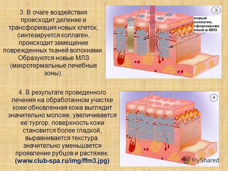 3. В очаге воздействия происходит деление и трансформация новых клеток, синтезируется коллаген, происходит замещение поврежденных тканей волокнами. Образуются новые МЛЗ (микротермальные лечебные зоны). 4. В результате проведенного лечения на обработа
