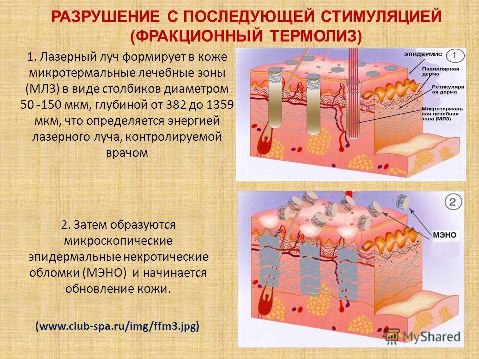 РАЗРУШЕНИЕ С ПОСЛЕДУЮЩЕЙ СТИМУЛЯЦИЕЙ (ФРАКЦИОННЫЙ ТЕРМОЛИЗ) 1. Лазерный луч формирует в коже микротермальные лечебные зоны (МЛЗ) в виде столбиков диаметром 50 -150 мкм, глубиной от 382 до 1359 мкм, что определяется энергией лазерного луча, контролиру