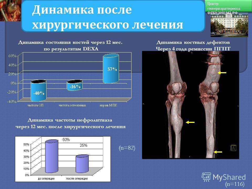 ( (n=394) ( (n=116) Динамика состояния после хирургического лечения ПГПТ. Динамика состояния костей через 12 мес. по результатам DEXA Динамика костных дефектов Через 4 года ремиссии ПГПТ Динамика частоты нефролитиаза через 12 мес. после хирургическог