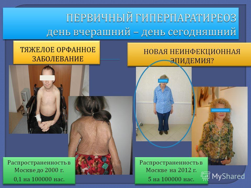НОВАЯ НЕИНФЕКЦИОННАЯ ЭПИДЕМИЯ ? НОВАЯ НЕИНФЕКЦИОННАЯ ЭПИДЕМИЯ ? Распространенность в Москве до 2000 г. 0,1 на 100000 нас. Распространенность в Москве до 2000 г. 0,1 на 100000 нас. Распространенность в Москве на 2012 г. 5 на 100000 нас. Распространенн