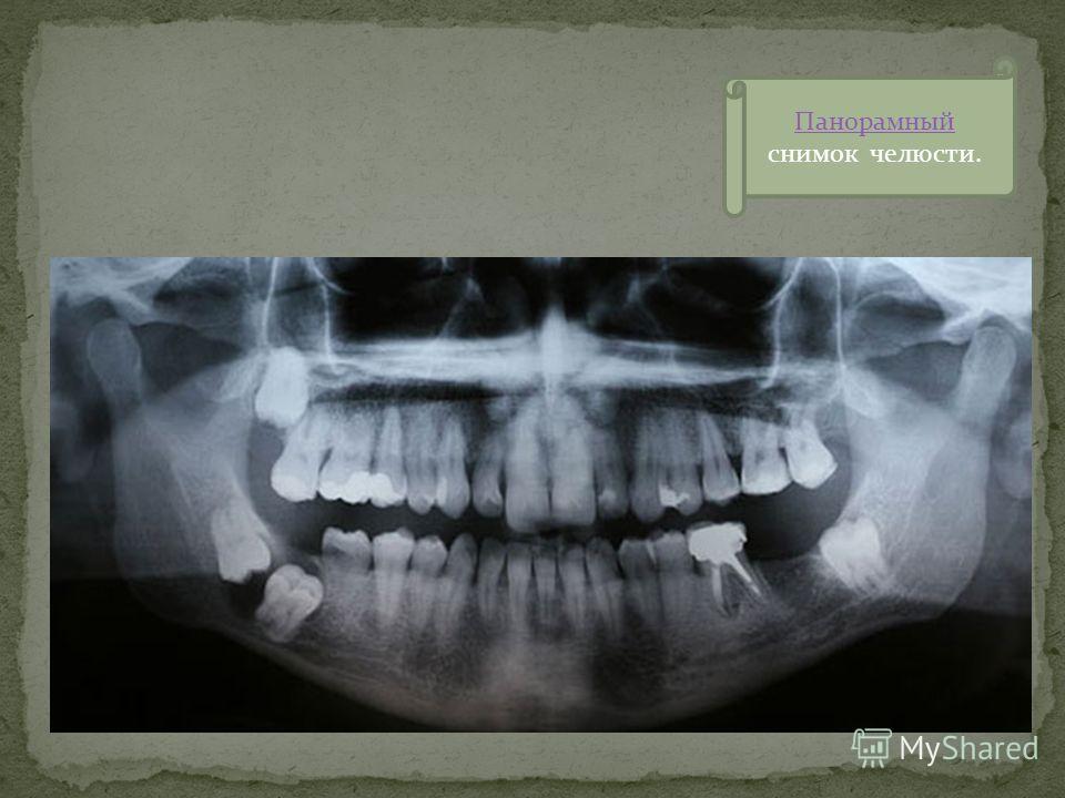 Целью челюстно-лицевой ортопедии является реабилитация больных с дефектами зубочелюстной системы. Для достижения этой цели проводится: Изучение частоты, этиопатогенеза, клиники и диагностики дефектов и деформаций зубочелюстной системы; Разрабатываютс