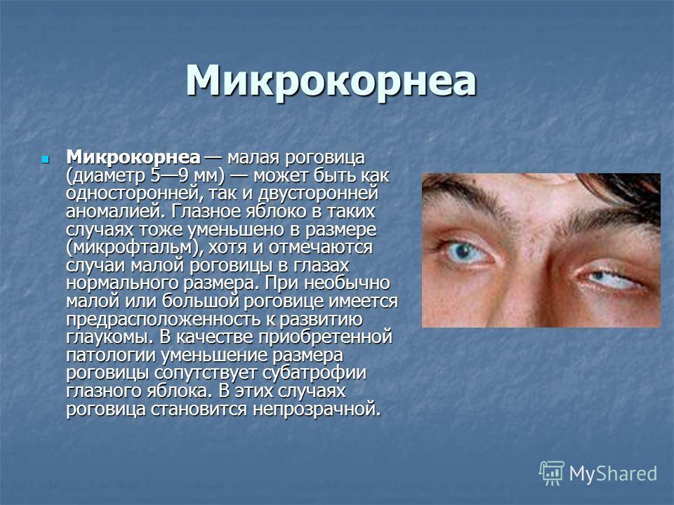 Микрокорнеа малая роговица (диаметр 59 мм) может быть как односторонней, так и двусторонней аномалией. Глазное яблоко в таких случаях тоже уменьшено в размере (микрофтальм), хотя и отмечаются случаи малой роговицы в глазах нормального размера. При не