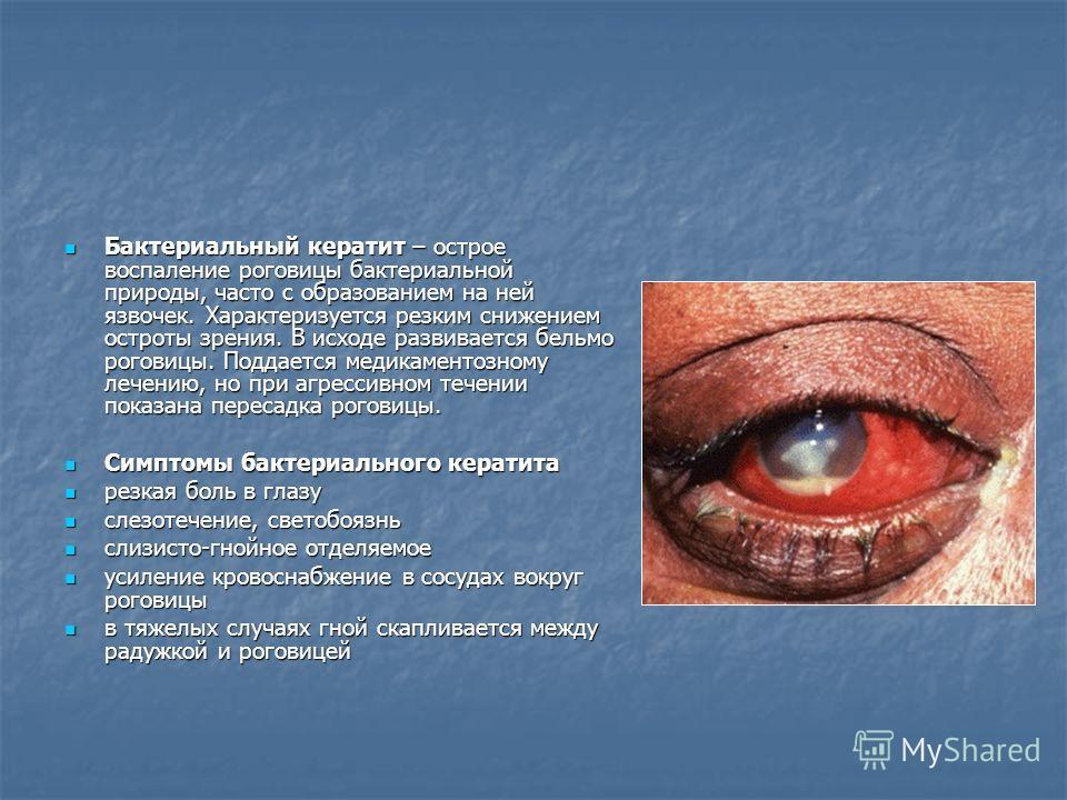 Бактериальный кератит – острое воспаление роговицы бактериальной природы, часто с образованием на ней язвочек. Характеризуется резким снижением остроты зрения. В исходе развивается бельмо роговицы. Поддается медикаментозному лечению, но при агрессивн