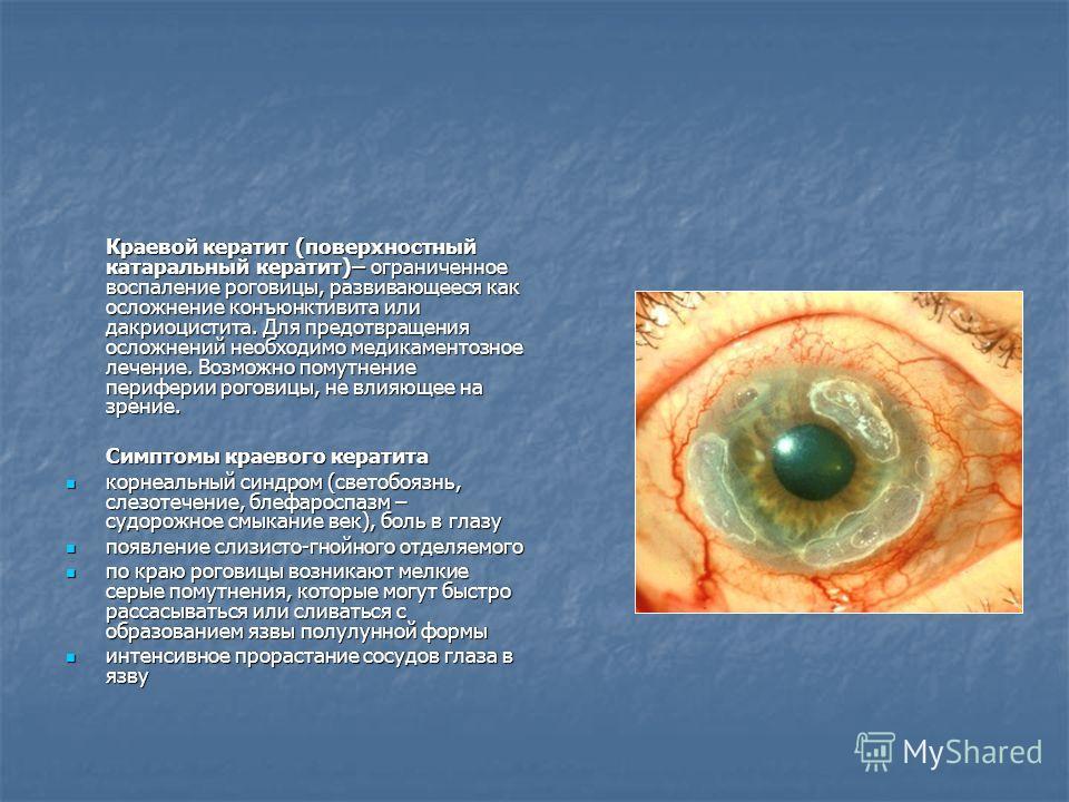 Краевой кератит (поверхностный катаральный кератит)– ограниченное воспаление роговицы, развивающееся как осложнение конъюнктивита или дакриоцистита. Для предотвращения осложнений необходимо медикаментозное лечение. Возможно помутнение периферии рогов
