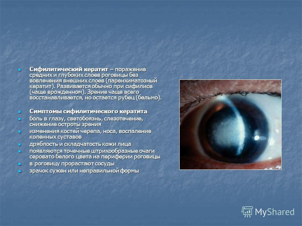 Сифилитический кератит – поражение средних и глубоких слоев роговицы без вовлечения внешних слоев (паренхиматозный кератит). Развивается обычно при сифилисе (чаще врожденном). Зрение чаще всего восстанавливается, но остается рубец (бельмо). Сифилитич