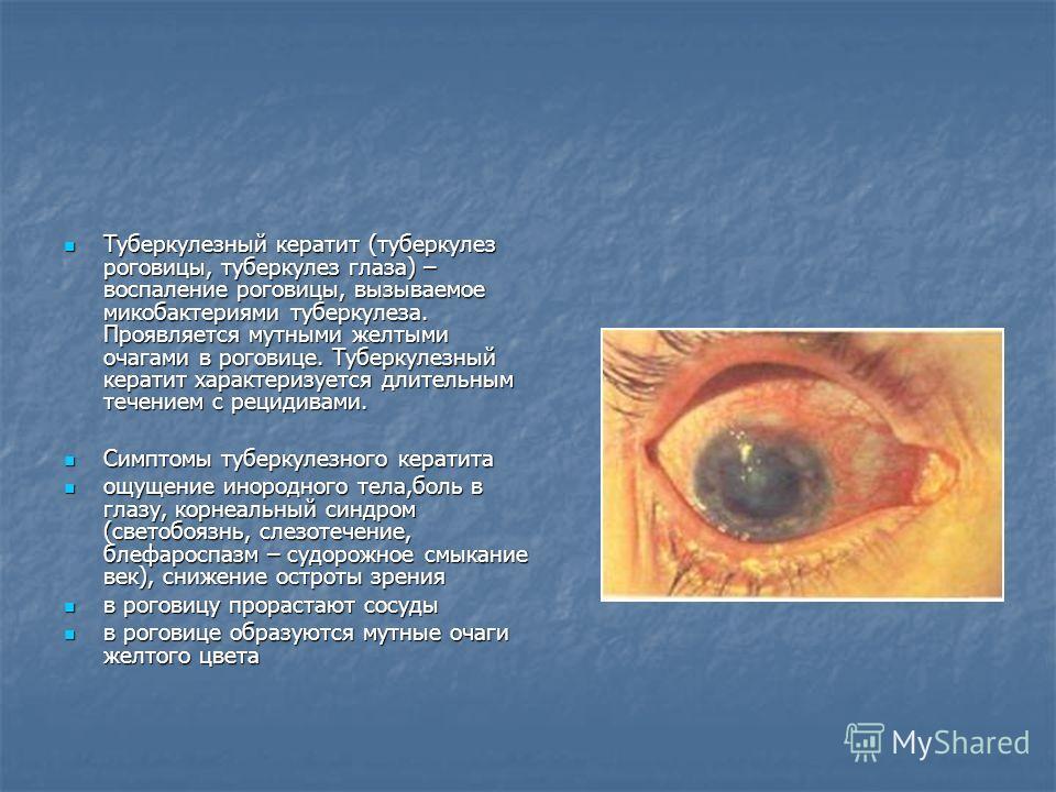 Туберкулезный кератит (туберкулез роговицы, туберкулез глаза) – воспаление роговицы, вызываемое микобактериями туберкулеза. Проявляется мутными желтыми очагами в роговице. Туберкулезный кератит характеризуется длительным течением с рецидивами. Туберк