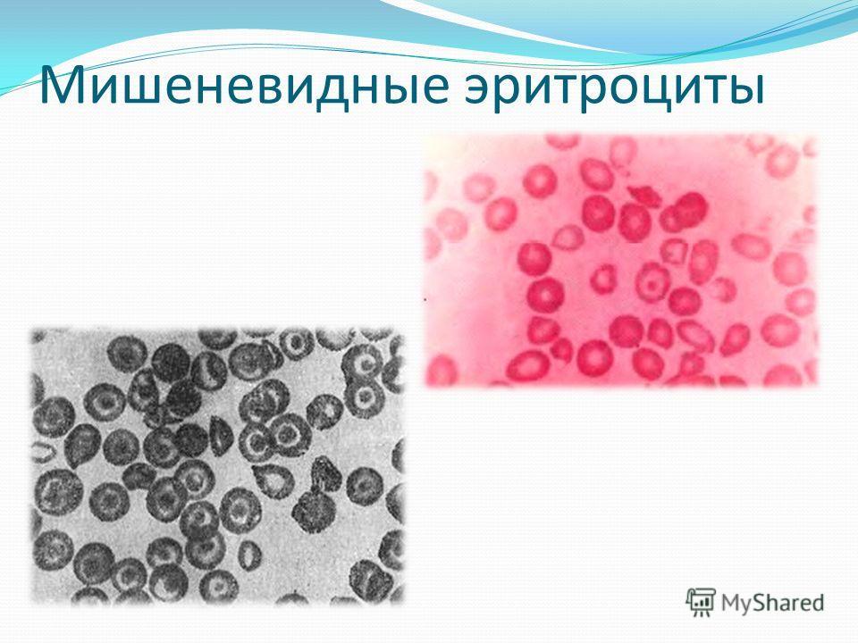 Мишеневидные эритроциты