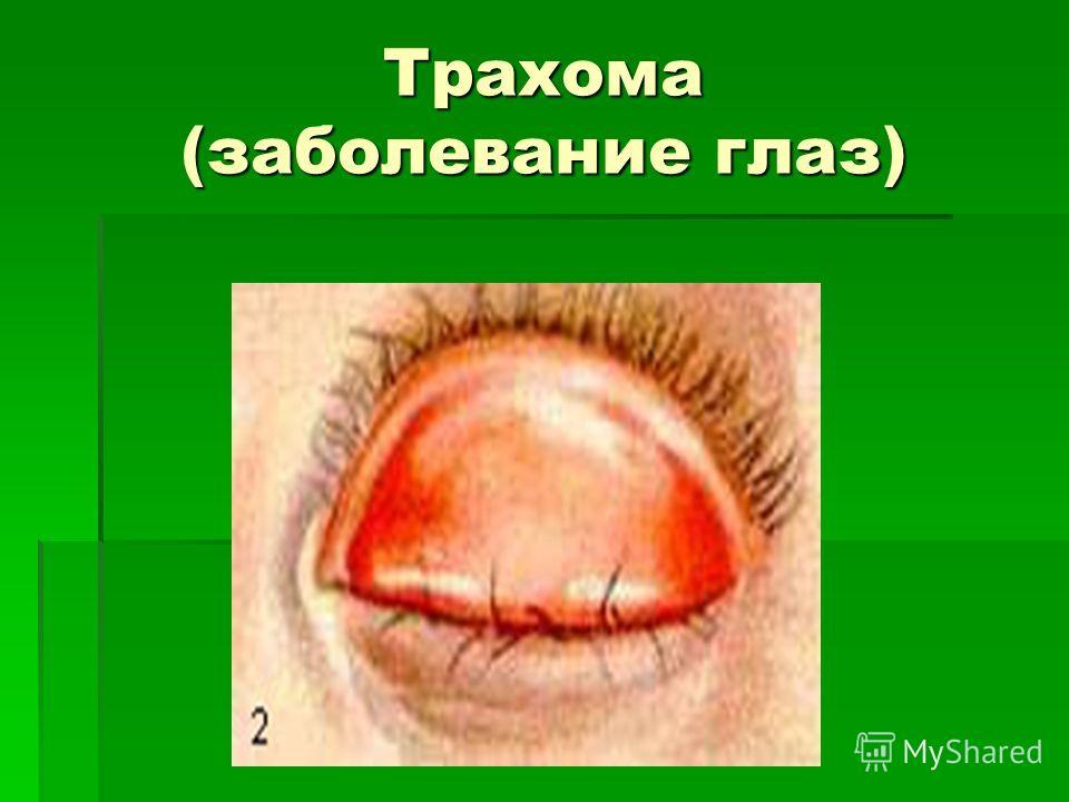 Трахома (заболевание глаз)