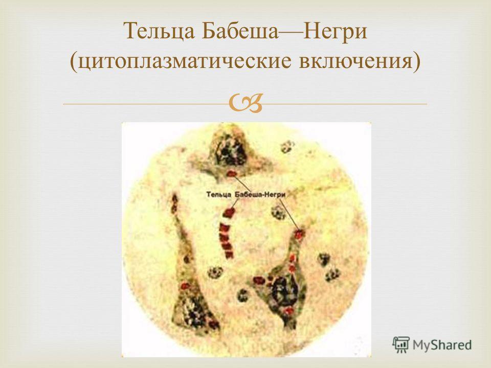 Тельца Бабеша Негри ( цитоплазматические включения )