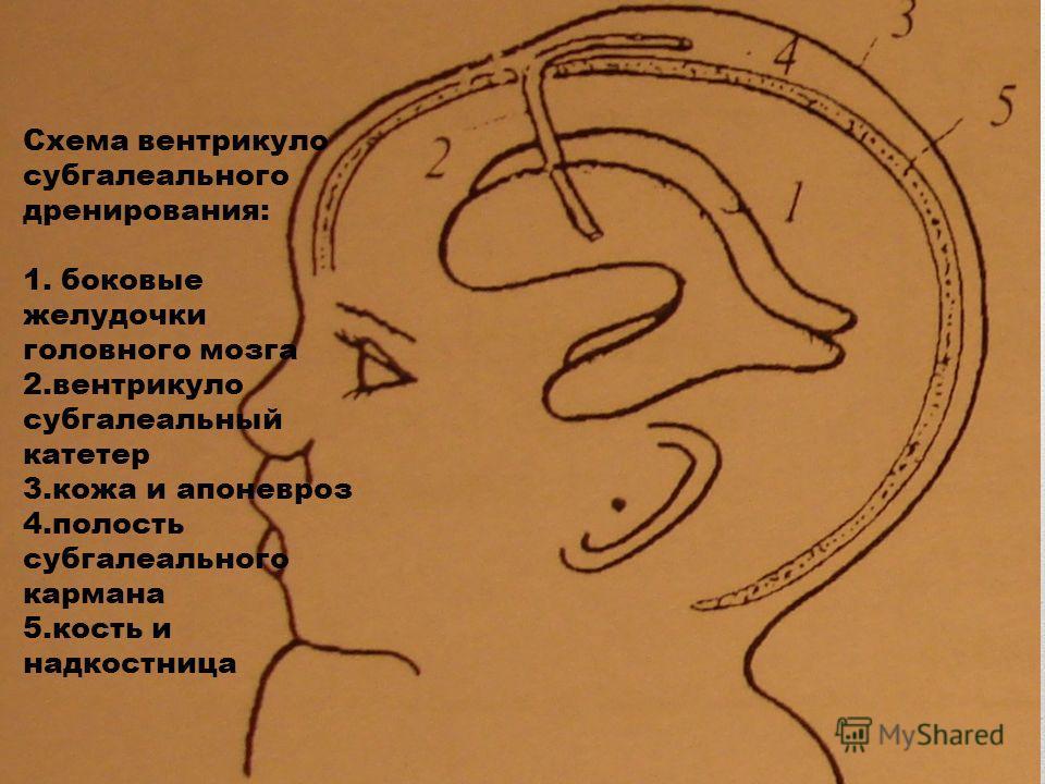 Схема вентрикуло субгалеального дренирования: 1. боковые желудочки головного мозга 2. вентрикуло субгалеальный катетер 3. кожа и апоневроз 4. полость субгалеального кармана 5. кость и надкостница