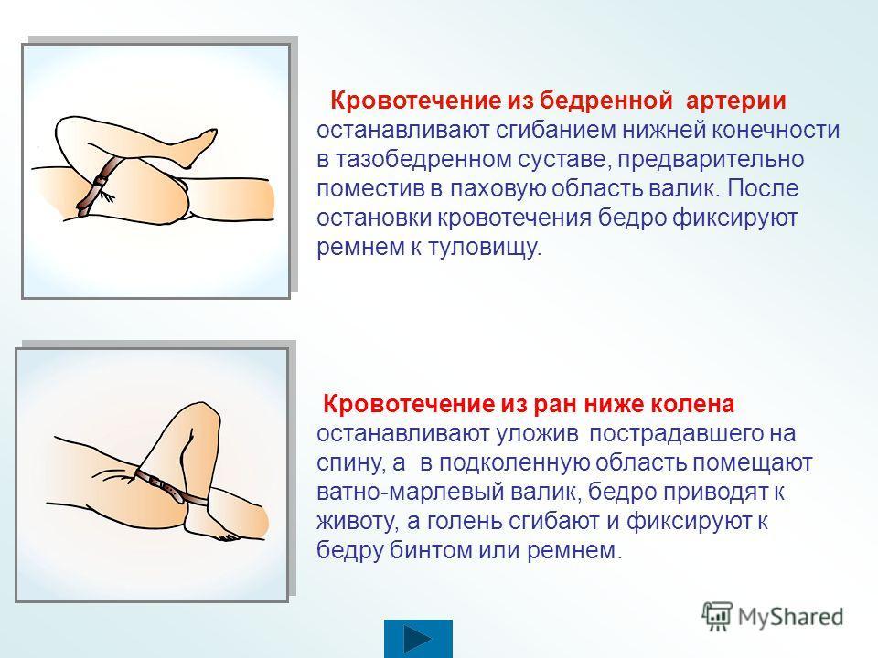 Максимальное сгибание конечности Производят в суставе выше раны и фиксируют конечность бинтами ( подручными средствами) в таком положении. Максимальное сгибание конечности можно сохранять не более 2 часов. А - при ранении плечевой артерии ее прижимаю