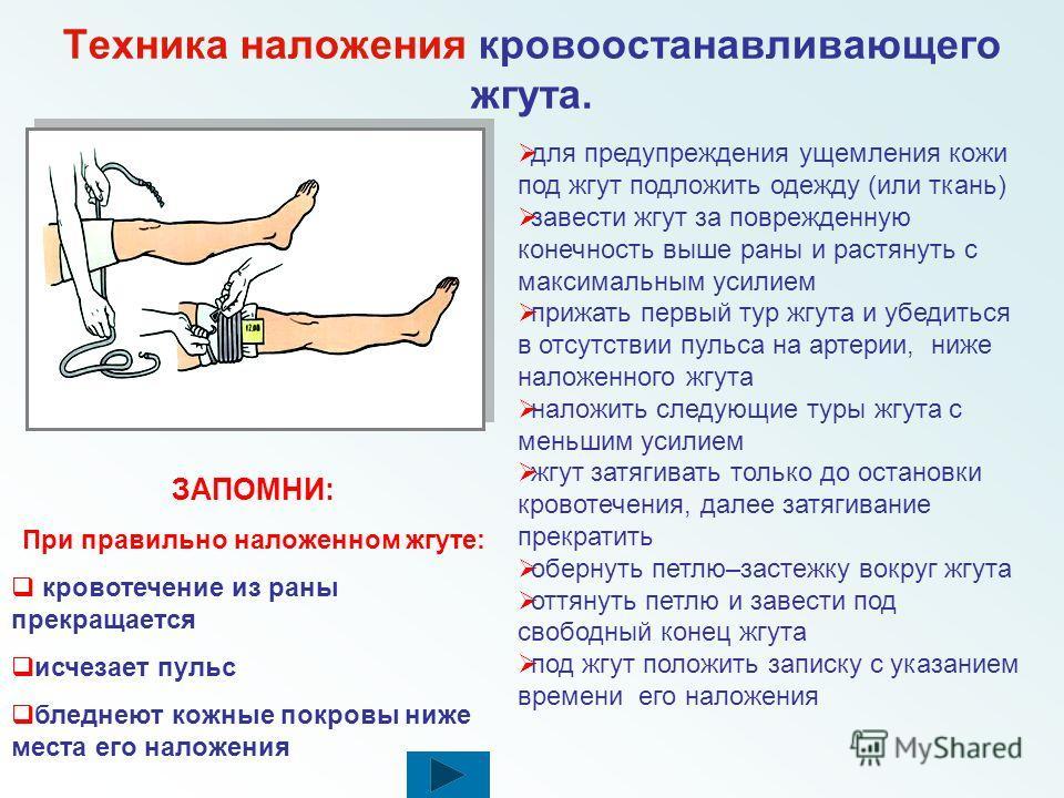 Правила наложения кровоостанавливающего жгута накладывать жгут только на одежду (если одежды нет - подложить под жгут ткань) жгут затягивать только до остановки кровотечения, далее затягивание прекратить при ранении кисти, предплечья, локтевой област
