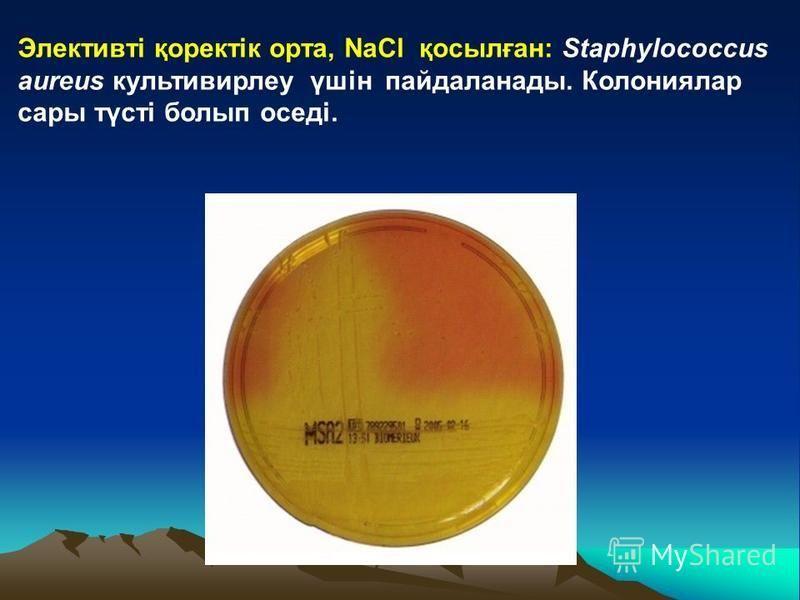 Элективті қоректік орта, NaCl қосылған: Staphylococcus aureus культивирлеу үшін пайдаланады. Колониялар сары түсті болып оседі.
