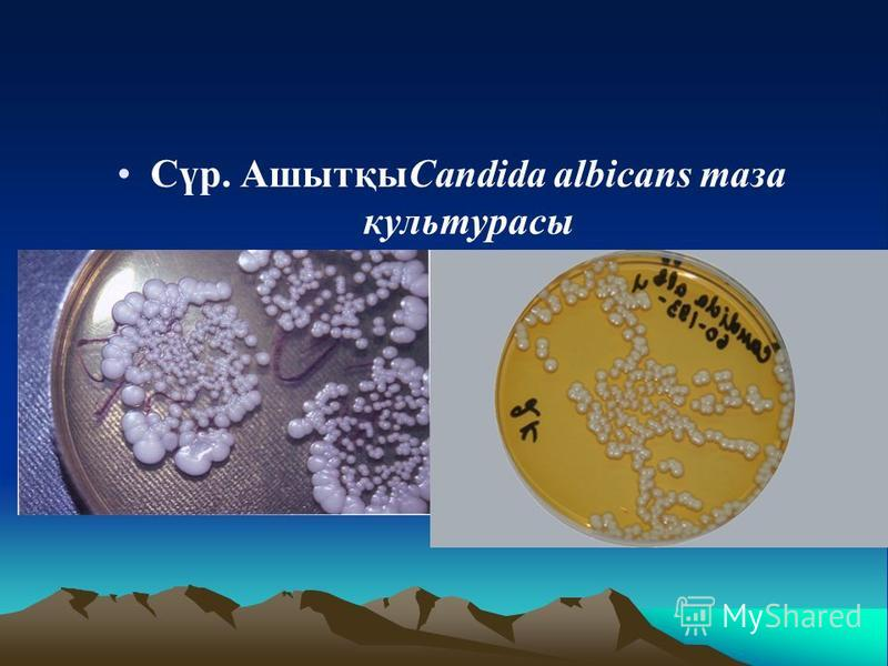 Сүр. АшытқыCandida albicans таза культурасы
