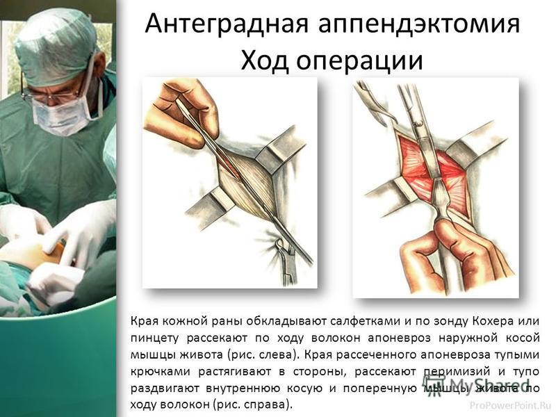 фото операции аппендэктомия ход