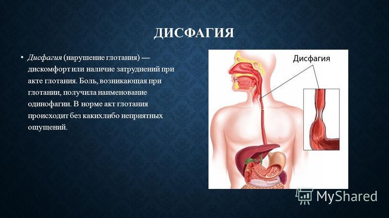 Чем полоскать горло при эзофагите