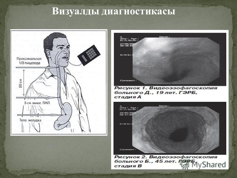Визуалды диагностикасы