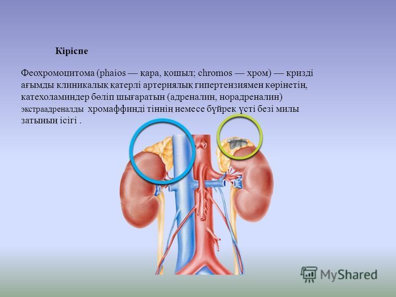 Феохромоцитома (phaios қара, қошыл; chromos хром) кризді ағымды клиникалық қатерлі артериялық гипертензия мен көрінетін, катехоламин дер бөліп шығаратын (адреналин, норадреналин) экстраадреналды хромаффинді тіннің немсе бүйрек үсті безі милы затының