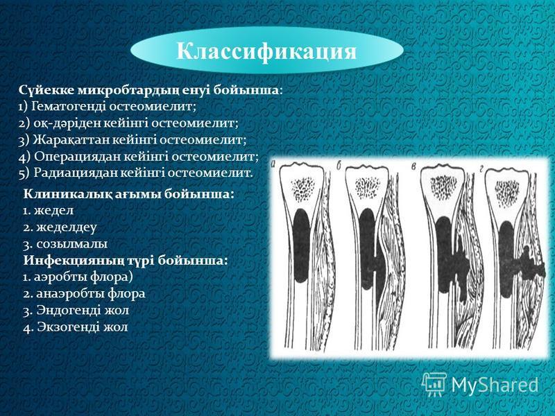 Классификация С ү векке микробтарды ң енуі бойынша: 1) Гематогенді остеомиелит; 2) о қ -д ә ріден кейінгі остеомиелит; 3) Жара қ этан кейінгі остеомиелит; 4) Операциядан кейінгі остеомиелит; 5) Радиациядан кейінгі остеомиелит. Клиникали қ а ғ мы бойы