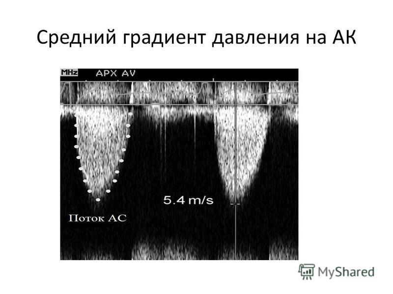 Средний градиент давления на АК