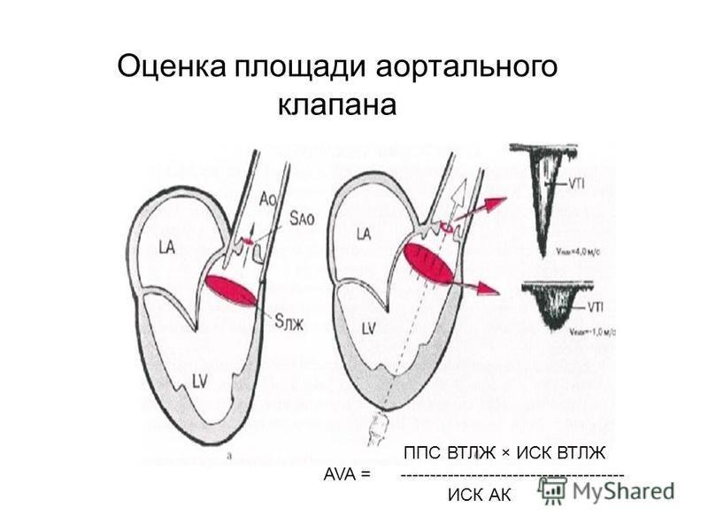Оценка площади аортального клапана ППС ВТЛЖ × ИСК ВТЛЖ AVA = -------------------------------------- ИСК АК