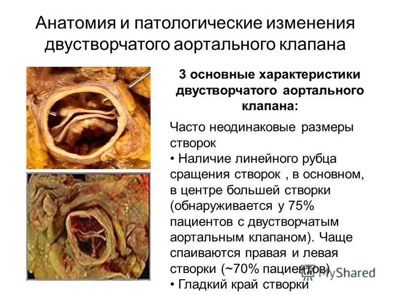 Анатомия и патологические изменения двустворчатого аортального клапана 3 основные характеристики двустворчатого аортального клапана: Часто неодинаковые размеры створок Наличие линейного рубца сращения створок, в основном, в центре большей створки (об