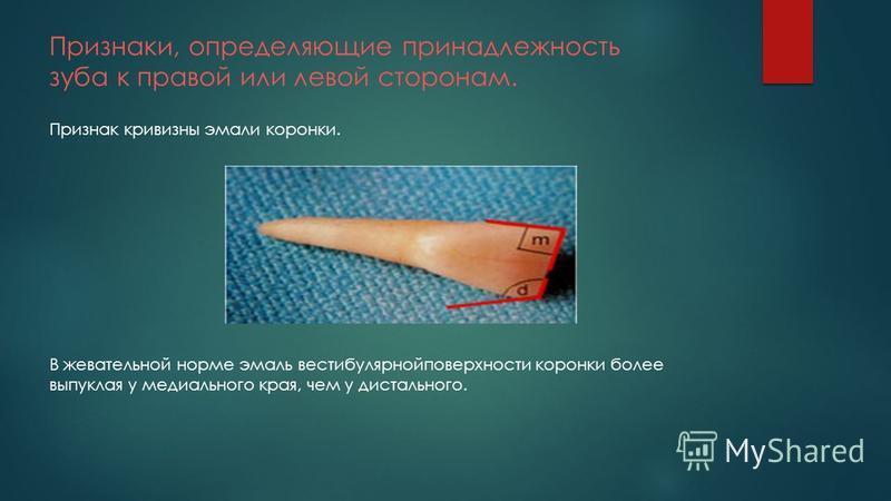 Признаки, определяющие принадлежность зуба к правой или левой сторонам. Признак кривизны эмали коронки. В жевательной норме эмаль вестибулярной поверхности коронки более выпуклая у медиального края, чем у дистального.