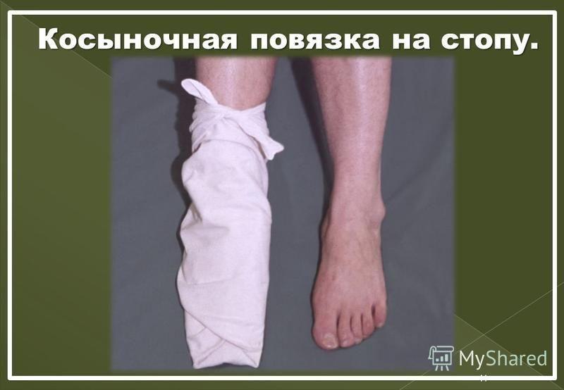 Косыночная повязка на стопу. 11