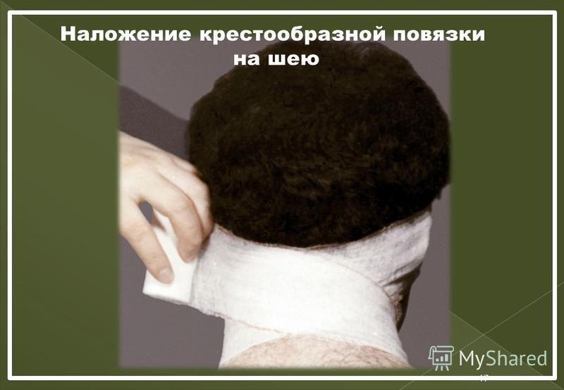 Наложение крестообразной повязки на шею 17