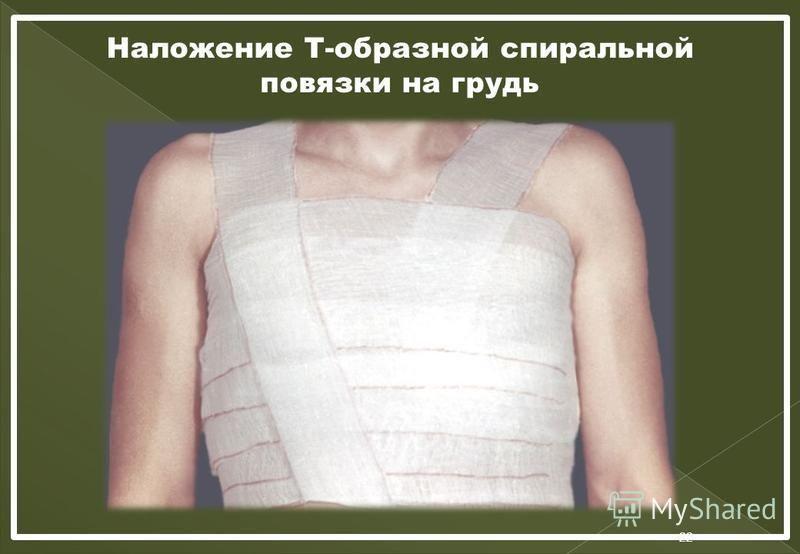 Наложение Т-образной спиральной повязки на грудь 22