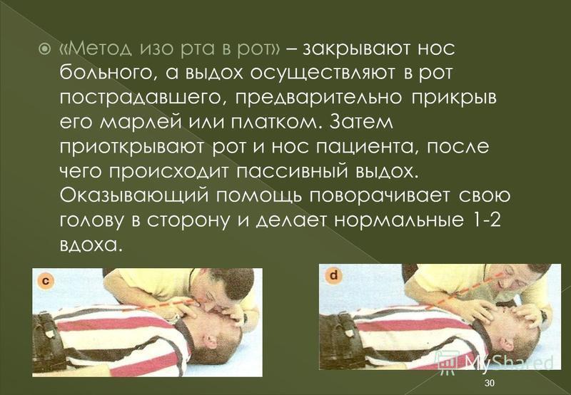 «Метод изо рта в рот» – закрывают нос больного, а выдох осуществляют в рот пострадавшего, предварительно прикрыв его марлей или платком. Затем приоткрывают рот и нос пациента, после чего происходит пассивный выдох. Оказывающий помощь поворачивает сво