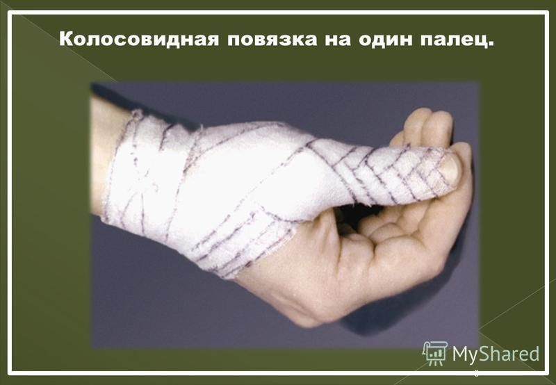 8 Колосовидная повязка на один палец.
