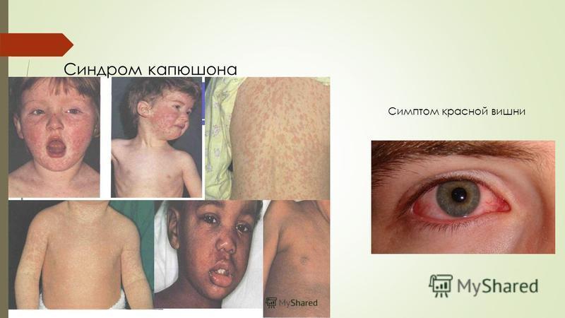 Синдром капюшона Симптом красной вишни