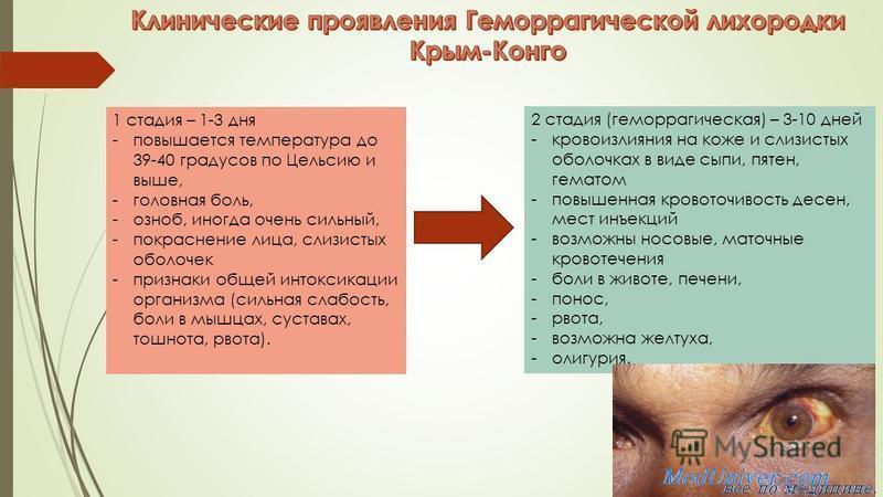 1 стадия – 1-3 дня -повышается температура до 39-40 градусов по Цельсию и выше, -головная боль, -озноб, иногда очень сильный, -покраснение лица, слизистых оболочек -признаки общей интоксикации организма (сильная слабость, боли в мышцах, суставах, тош