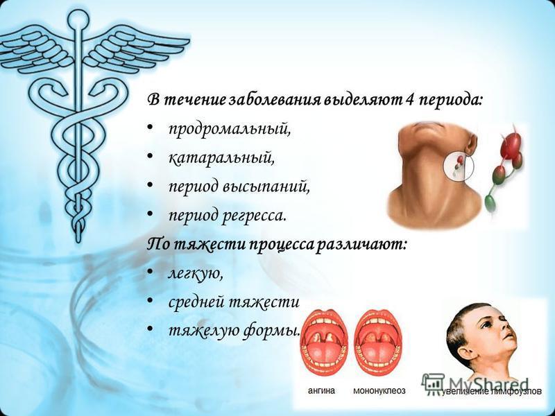 В течение заболевания выделяют 4 периода: продромальный, катаральный, период высыпаний, период регресса. По тяжести процесса различают: легкую, средней тяжести тяжелую формы.