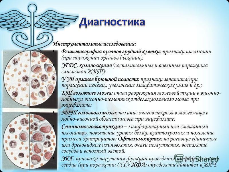 Инструментальные исследования: Рентгенография органов грудной клетки: признаки пневмонии (при поражении органов дыхания); ЭГДС, колоноскопия (воспалительные и язвенные поражения слизистой ЖКТ); УЗИ органов брюшной полости: признаки гепатита(при пораж
