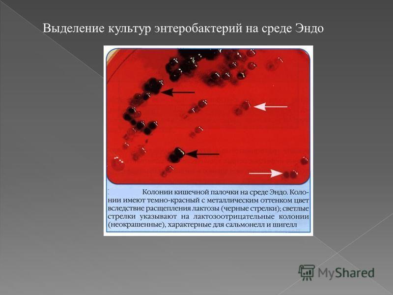 Выделение культур энтеробактерий на среде Эндо