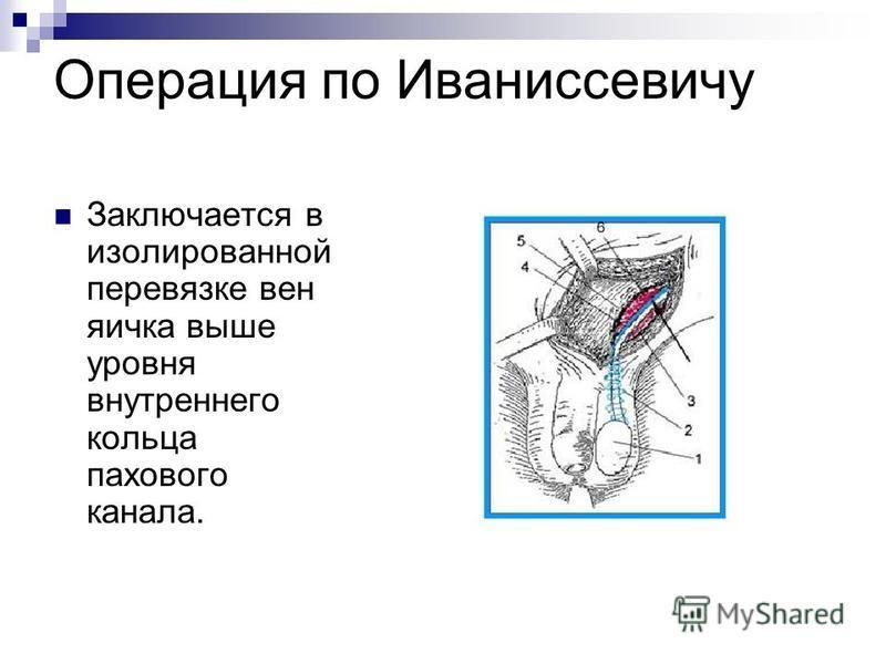 Операция по Иваниссевичу Заключается в изолированной перевязке вен яичка выше уровня внутреннего кольца пахового канала.