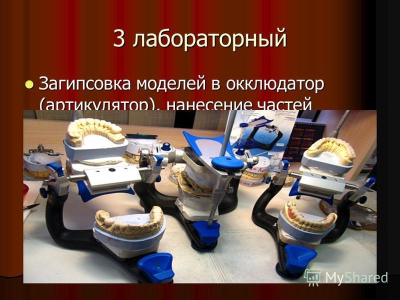 3 лабораторный Загипсовка моделей в окклюдатор (артикулятор), нанесение частей протеза на модели. Загипсовка моделей в окклюдатор (артикулятор), нанесение частей протеза на модели.