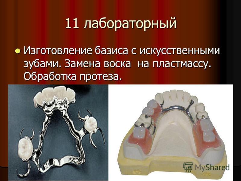 11 лабораторный Изготовление базиса с искусственными зубами. Замена воска на пластмассу. Обработка протеза. Изготовление базиса с искусственными зубами. Замена воска на пластмассу. Обработка протеза.
