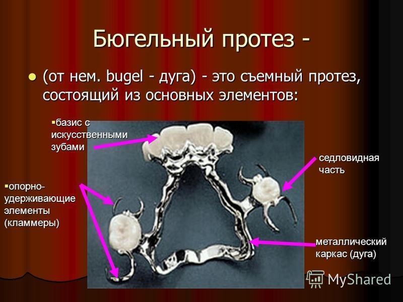 Бюгельный протез - (от нем. bugel - дуга) - это съемный протез, состоящий из основных элементов: (от нем. bugel - дуга) - это съемный протез, состоящий из основных элементов: металлический каркас (дуга) седловидная часть опорно- удерживающие элементы