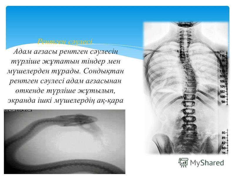 Жедел диагностика мақсатинда жеңіл, тасымалдауға қолайлы портативті ультрадыбыстық аппарат