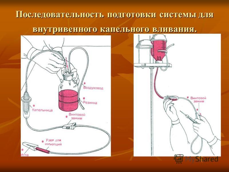 Последовательность подготовки системы для внутривенного капельного вливания.