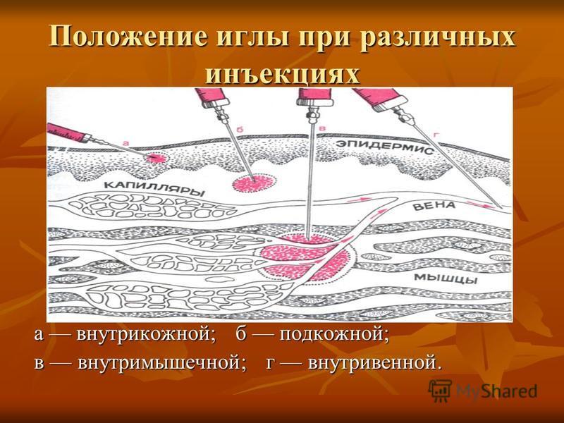 Положение иглы при различных инъекциях а внутрикожной; б подкожной; в внутримышечной; г внутривенной.