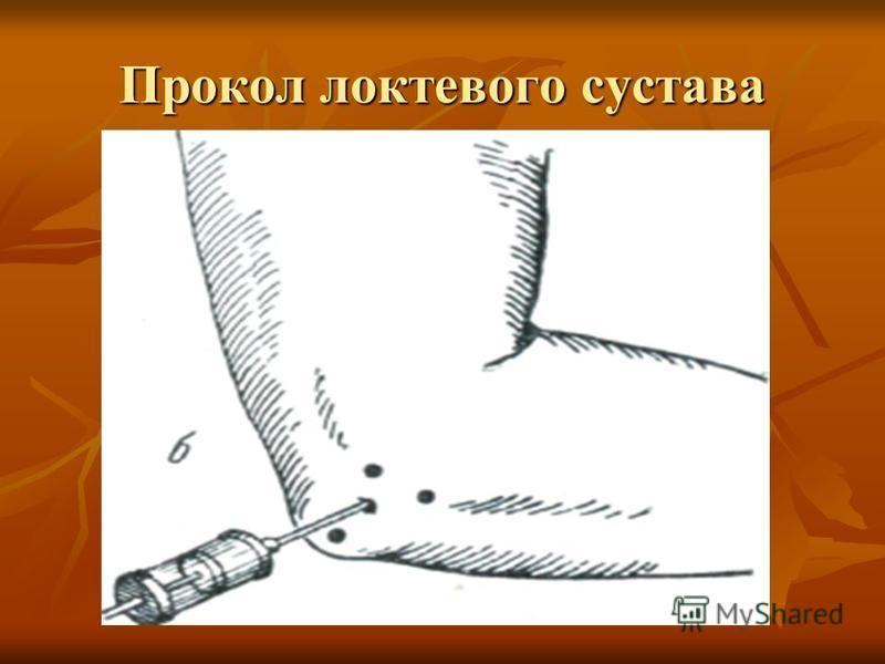 Прокол локтевого сустава