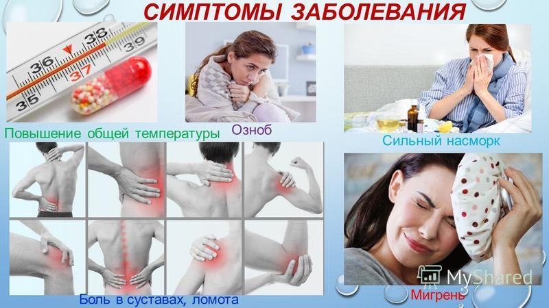 СИМПТОМЫ ЗАБОЛЕВАНИЯ Повышение общей температуры Озноб Мигрень Сильный насморк Боль в суставах, ломота