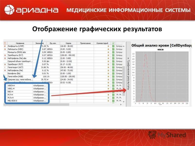 МЕДИЦИНСКИЕ ИНФОРМАЦИОННЫЕ СИСТЕМЫ Отображение графических результатов